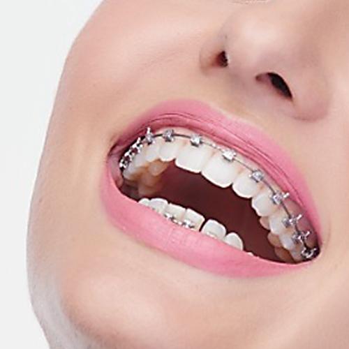 Aparaty ortodontyczne samoligaturujące